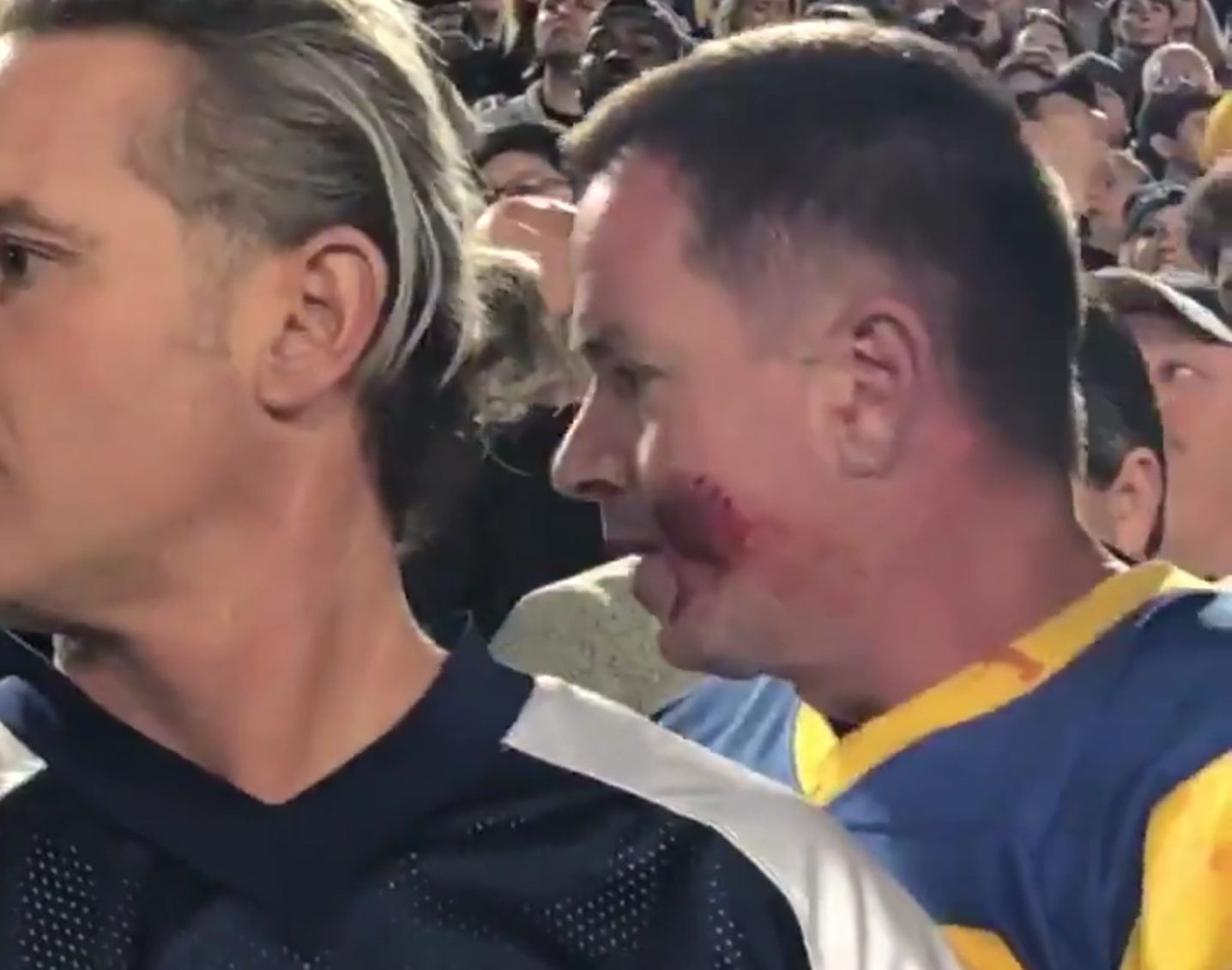 Fight at Cowboys and Rams Game Ends with a Bite to the Face